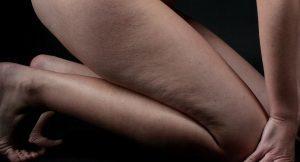 Aktywne przeciwdziałanie cellulitowi